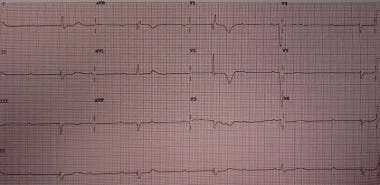 Third-degree heart block. Image courtesy of James