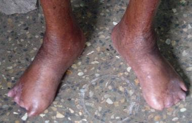 Advanced lepromatous leprosy with amputation of to