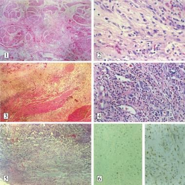 Microscopic findings of inflammatory myofibroblast