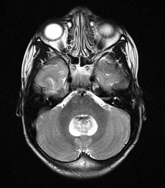 T2-weighted axial magnetic resonance image of a po