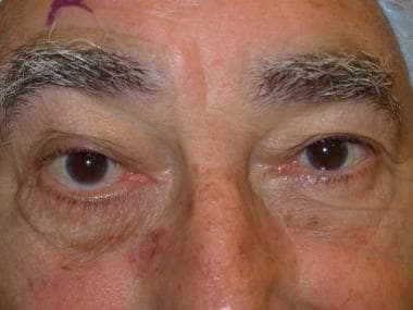 Right lower-eyelid horizontal laxity leading to ec