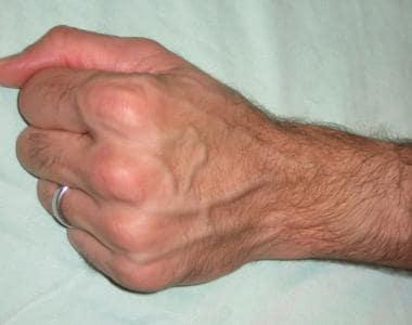 Nitroglycerin Ointment Placement