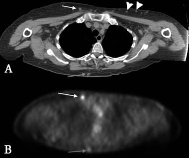 Positron emission tomography (PET) CT in an 80-yea