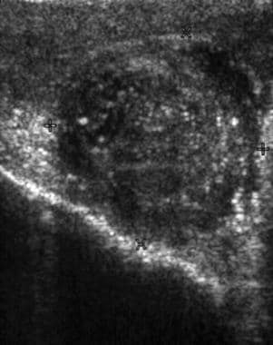 This ultrasonogram shows an enlarged epididymis wi