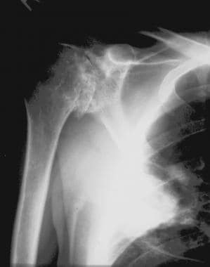Radiograph of the shoulder of a 35-year-old man wi