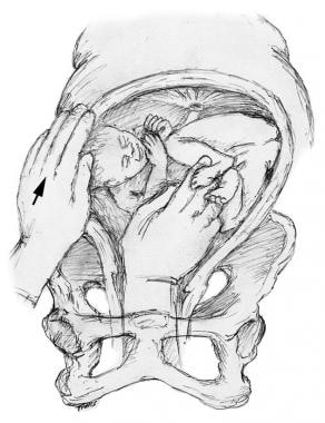 With the other hand, guide the fetal head upward.