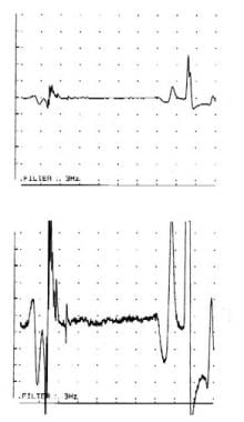 Motor-unit action potentials recorded from the bic