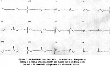 Complete heart block with wide complex escape.