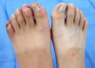 Feet of patient with thromboangiitis obliterans (B