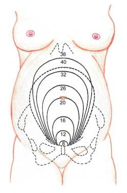 Uterine fundal size and relative position on abdom