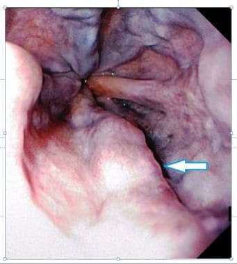 Endoscopic picture of esophageal varices. Courtesy