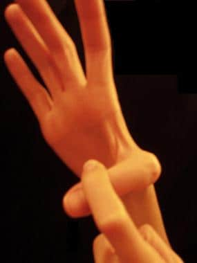 Hand position used for testing if laxity is presen
