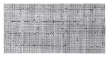 Electrocardiogram showing complete heart block. Th