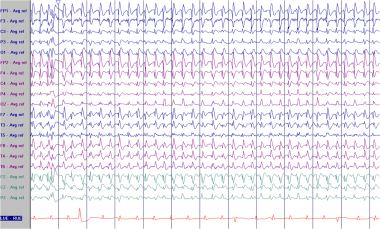 Pseudoperiodic generalized epileptiform discharges
