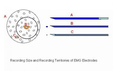 EMG Evaluation of the Motor Unit - Electrophysiologic Biopsy