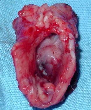 This resected tracheal segment shows ulceration of