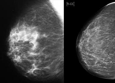 Mammography In Breast Cancer Background X Ray Mammography