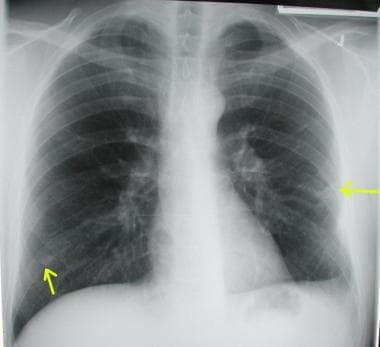 Chest radiograph shows bilateral pulmonary arterio