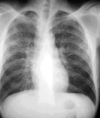 Posteroanterior chest radiograph in a 31-year-old