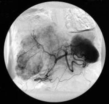 Celiac-axis angiography (arterial phase) of a pati