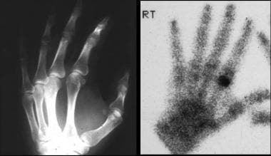 Differential diagnosis of painful fingers: osteoid