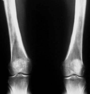 Radiograph in a patient with long-standing bronchi
