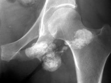 Anteroposterior radiograph of the hip in a patient