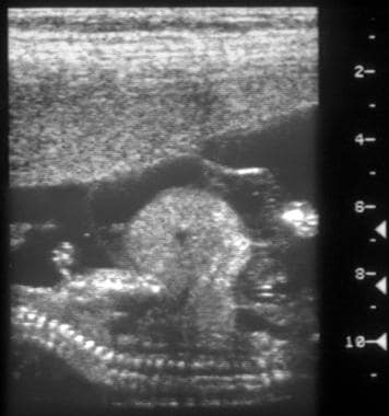 Sagittal antenatal scan on a 13- or 14-week-old fe