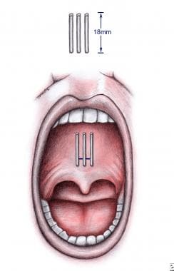 Illustration of the intraoral placement of 3 pilla