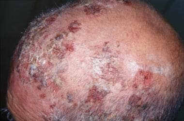 Crusted erosions on scalp (drug-induced pemphigus)