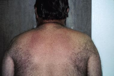 Middle-aged man who has diabetes with scleredema o