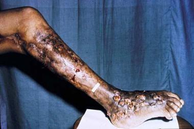 Eumycetoma of the leg with tumefaction, deformity,