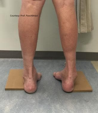 Same patient with Coleman block test showing corre