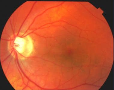 A normal-appearing macula of the left eye. Note th