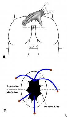 Goodsall rule for anorectal fistulas. Fistulas tha