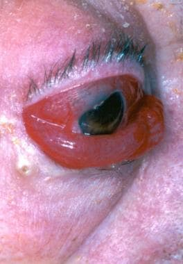 Type-D caroticocavernous fistula: the eye demonstr