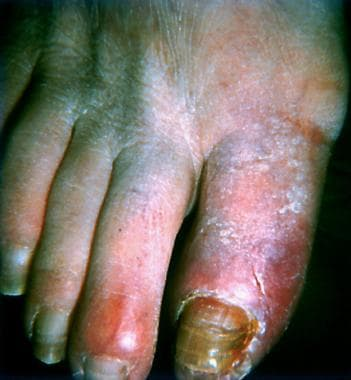 Superficial thrombophlebitis of great toe in patie