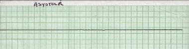Rhythm strip showing asystole.