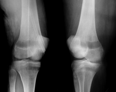 Knee radiographs in leukemia. Oblique radiographs