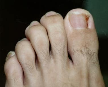Earance Of Typical Ingrown Toenail