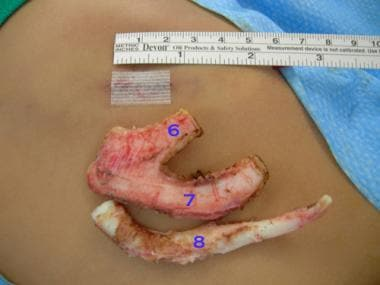 Incision should be as small as possible without je