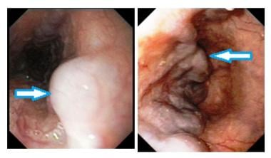 Endoscopic pictures of esophageal varices. Courtes