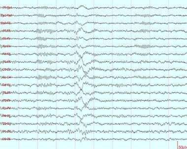 This shows a K complex, typically a high-amplitude