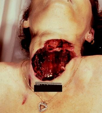 An incised wound complex of the anterior neck. Not