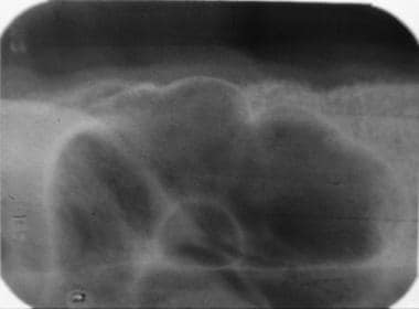 This radiograph of the maxillary sinus shows anoth