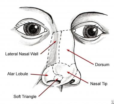Nasal aesthetic subunits.