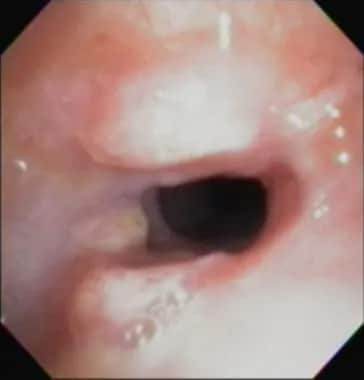 Bronchoscopic picture of trachea showing area of s