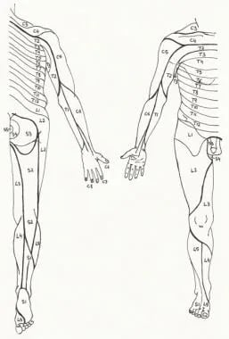 Dermatome (cutaneous sensory nerve root) distribut