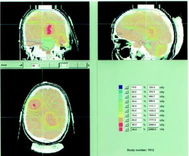 Intensity-modulated radiation therapy (IMRT) for a