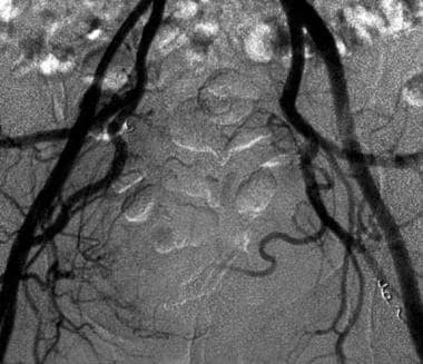 Postembolization angiogram shows a reduction of tu